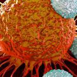 ارتباط سرطان و ماورا